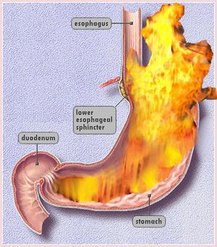 Stomach Acid Reflux My Throat