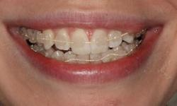 The Dental braces improve the positioning of the teeth
