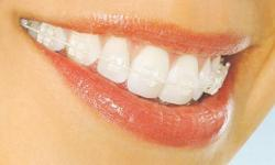 Correct your misaligned teeth through invisalign teeth