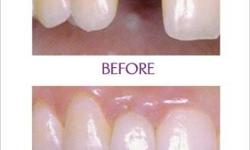Restore your smile with dental implants!! Dental
