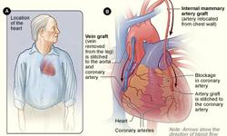 The common heart diseases that affects people are